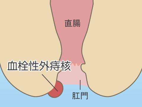 血栓性外痔核とは